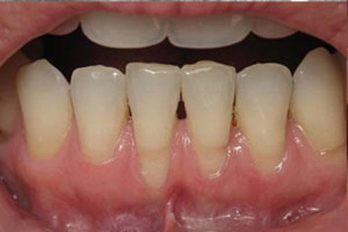Удалили зуб разрезали десну как долго может болеть
