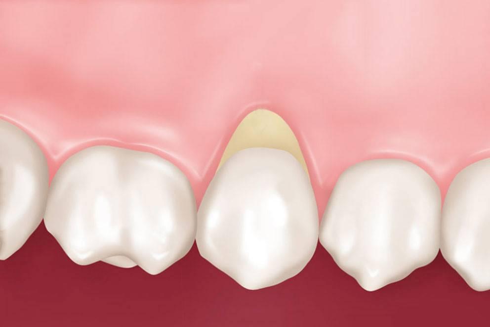 Клиновидный дефект зубов: причины, симптомы и лечение