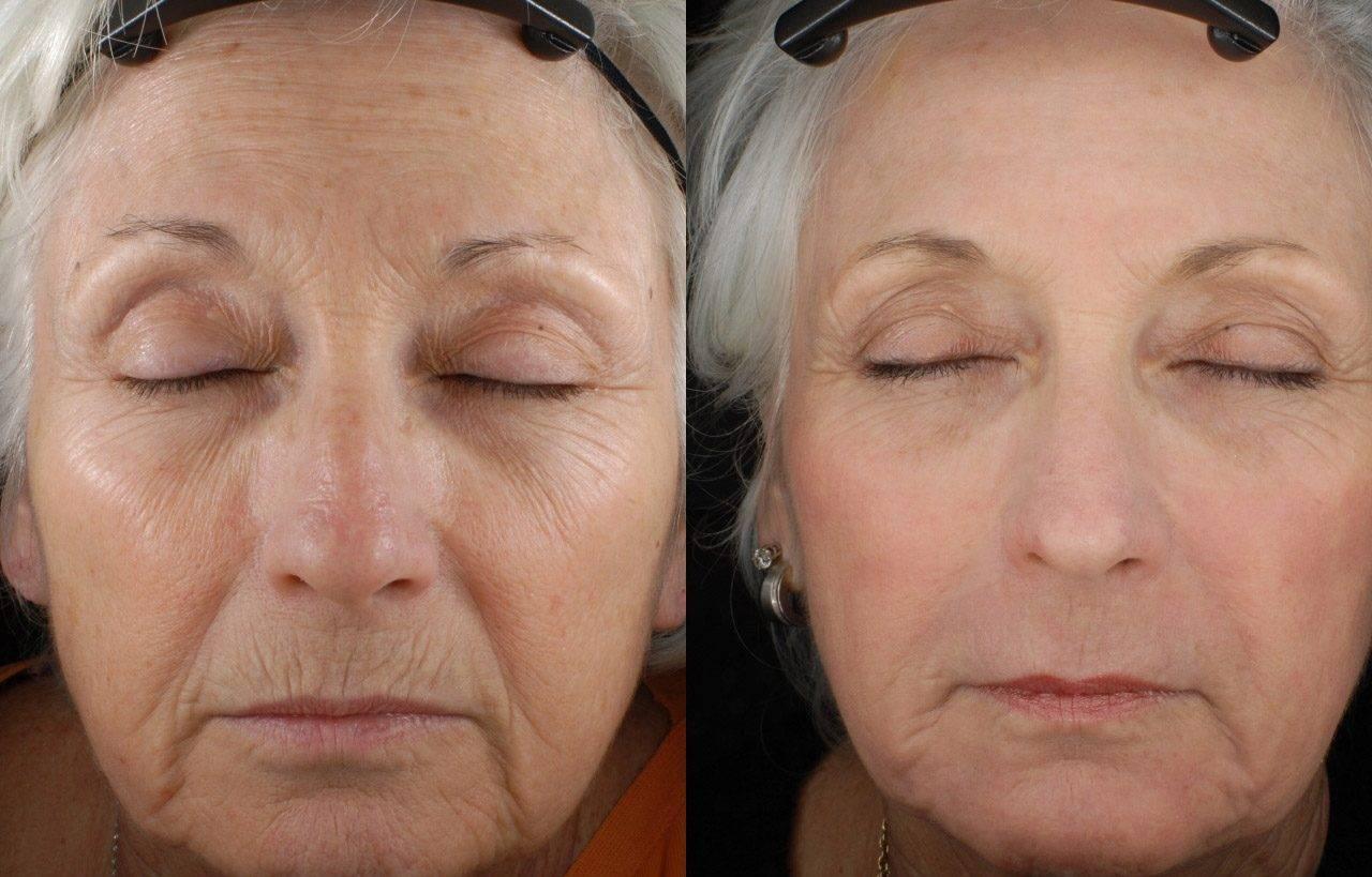 Лазерное омоложение: современный способ борьбы с возрастными изменениями
