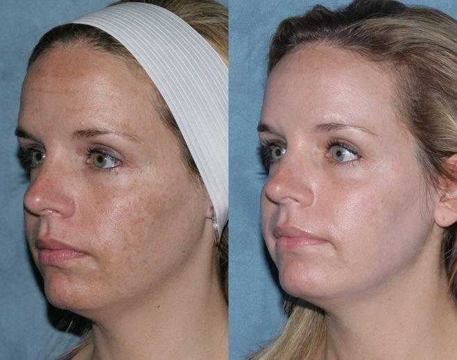 Луч очищающий – фраксель – лазерная терапия кожи лица: что это такое, противопоказания