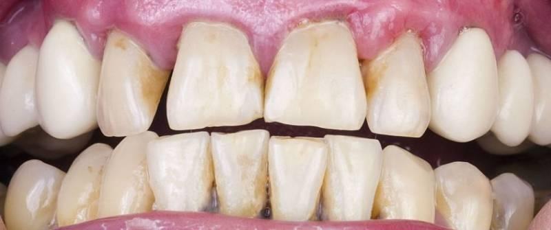 Способы восстановления зубной эмали