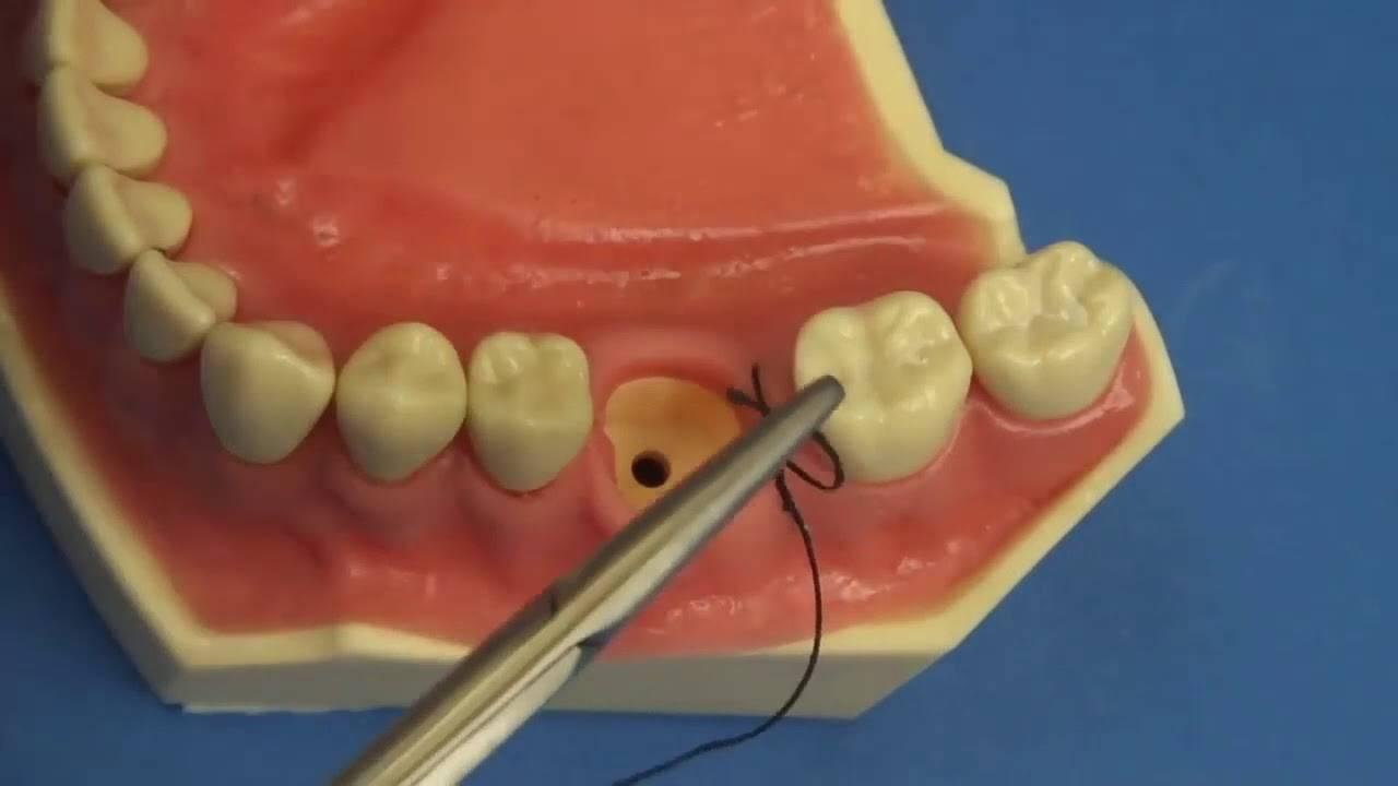 Как ухаживать за швами после удаления зуба?