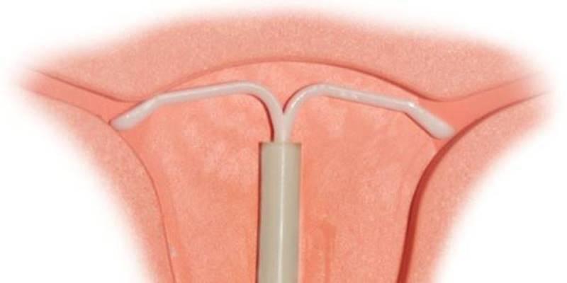 Внутриматочная спираль: чем хорош и чем плох этот метод контрацепции