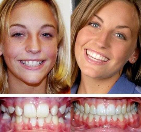 Прогнатический дистальный прикус: фото до и после брекетов