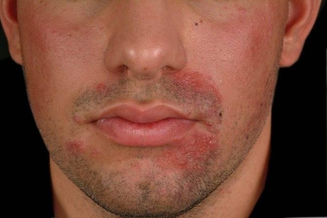 Причины появления прыщей в уголках губ и их лечение