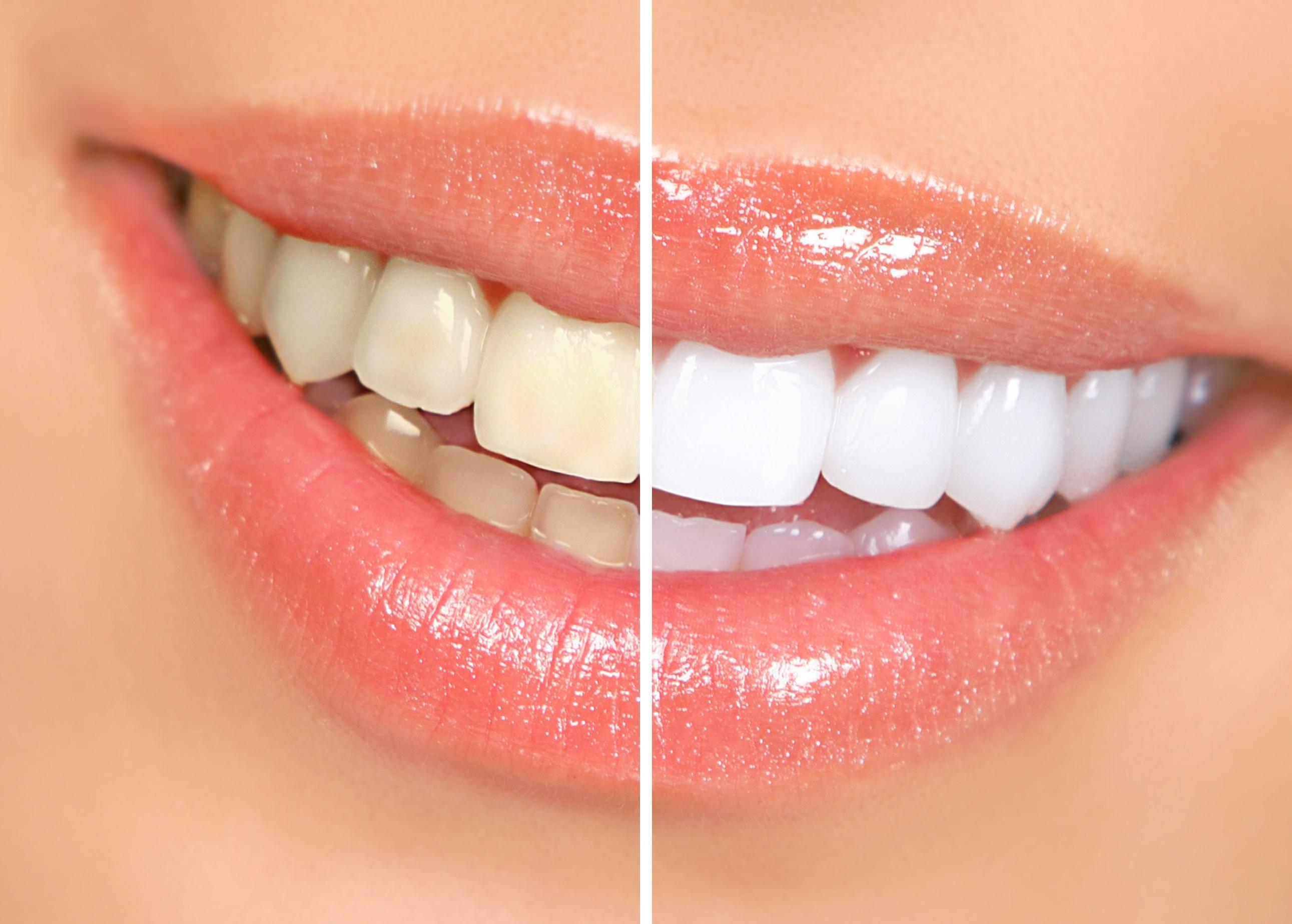 Желтые зубы — причины и способы отбелить пожелтевшую эмаль