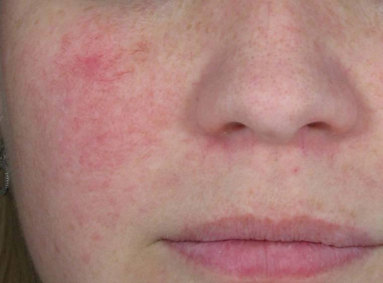 Шелушится кожа вокруг губ почему и что делать