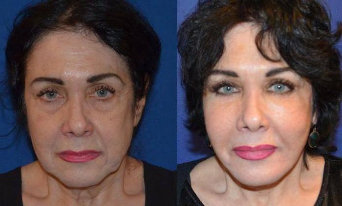 Плазмолифтинг для волос: больше никаких проблем с прической