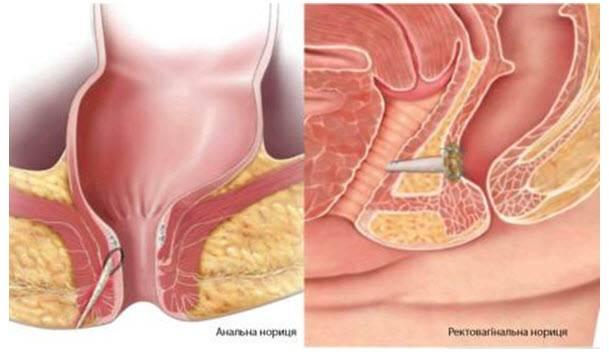 Лечение бартолинита у женщин: как избежать операции и забыть о недуге навсегда