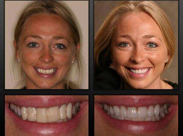Красивые зубы — это реальность