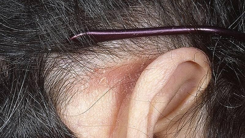 Атерома на голове: удаление на волосистой части, возможно ли лечение народными средствами, а также причины возникновения