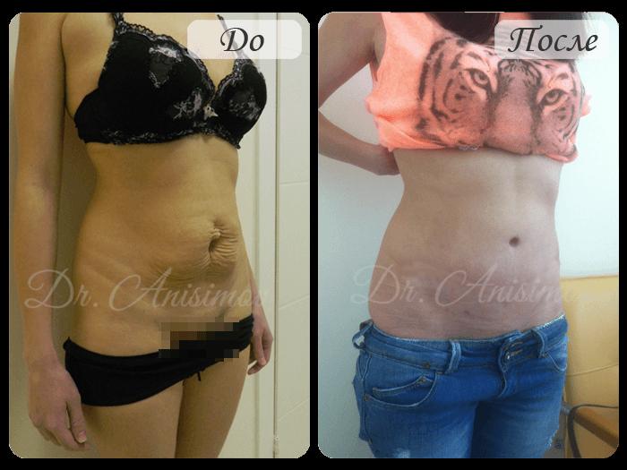 Как убрать живот после родов: фото до и после операции