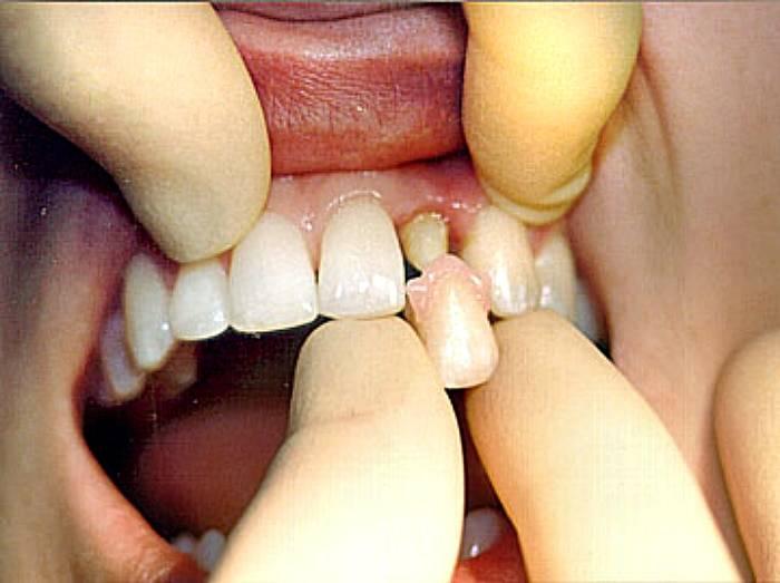 Зуб со штифтом болит при надавливании