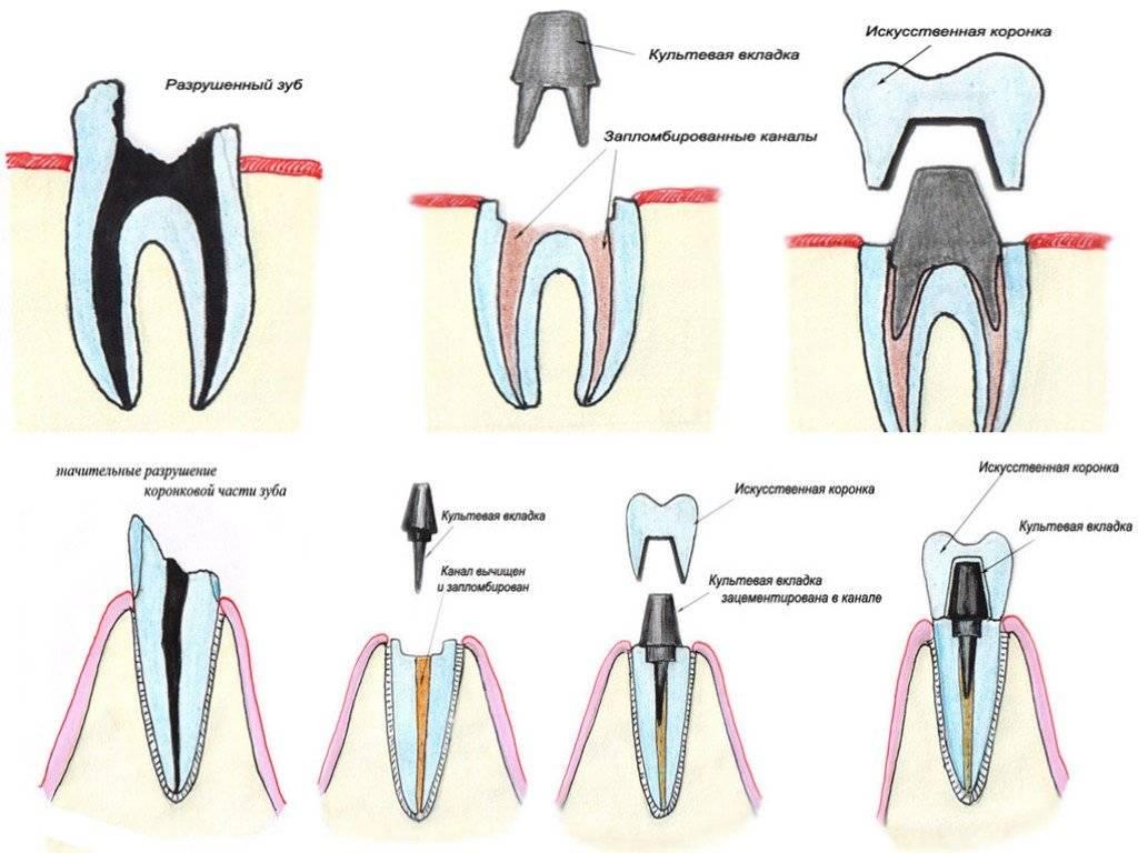 Нормальна ли повышенная чувствительность зубов после пломбирования и других видов лечения?