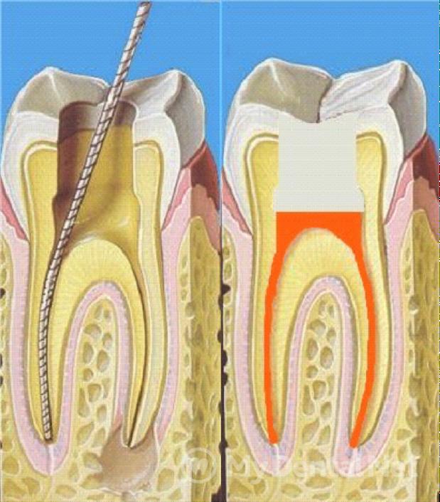 Временное пломбирование зуба во время эндодонтического лечения