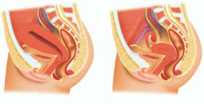 Восстановление матки после родов