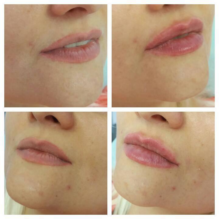 Контурная пластика как эффективный метод коррекции губ