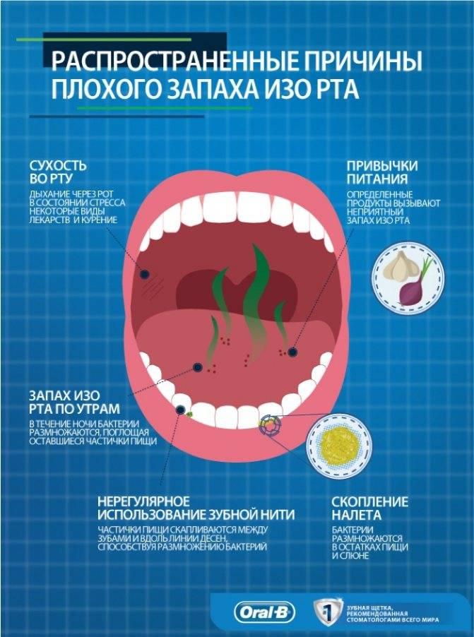 Неприятный запах изо рта от желудка