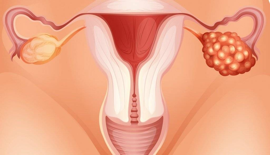 Симптомы и лечение кисты яичника в менопаузе