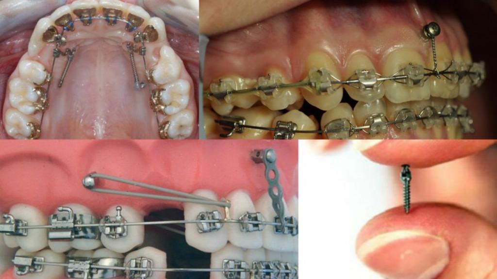 Можно ли поставить брекеты не на все зубы?