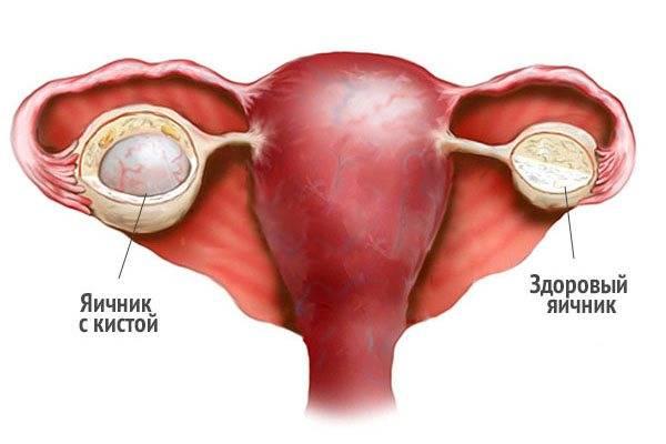 Развитие и осложнение кист яичника при климаксе