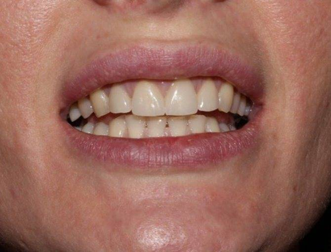 Имплантация зубов: функция и эстетика