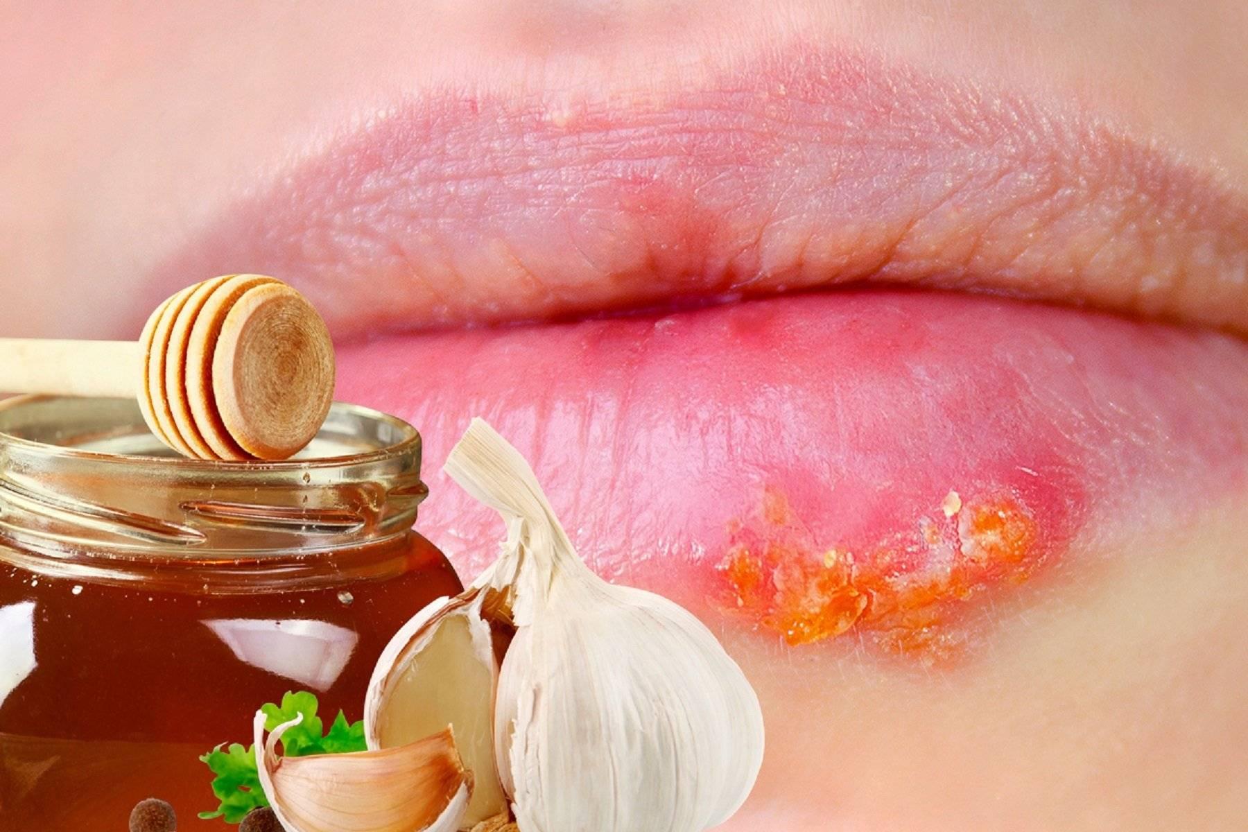 Болячка на внутренней стороне губы: описание с фото, причины появления, консультация врача, лечение и профилактика