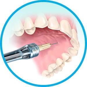 Сколько проходит анестезия после стоматолога