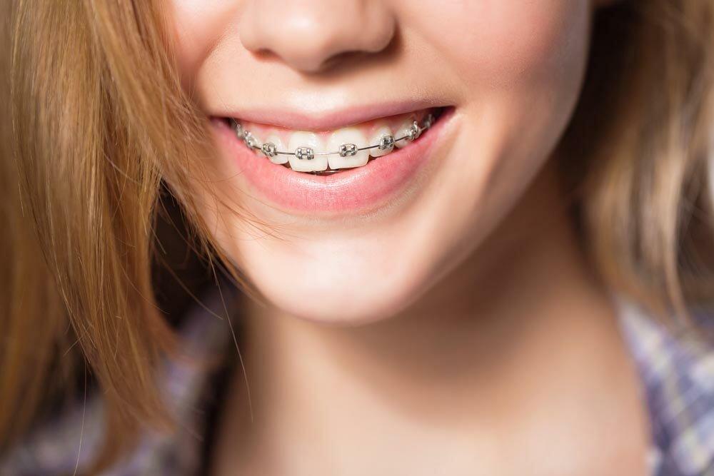 Все, что нужно знать о брекетах на зубы