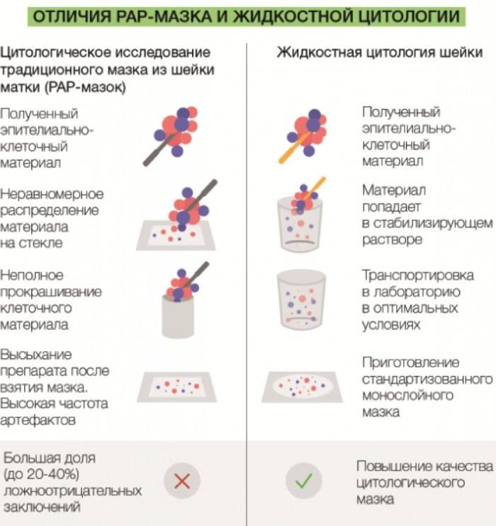 Кольпоскопия: подготовка к процедуре, процесс