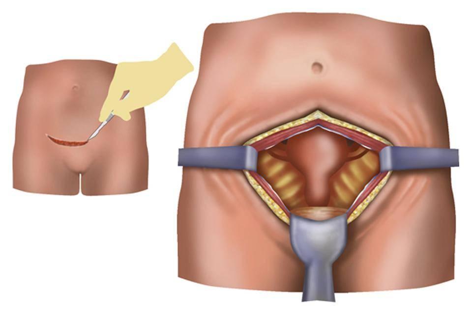 Беременность после удаления кисты яичника лапароскопия