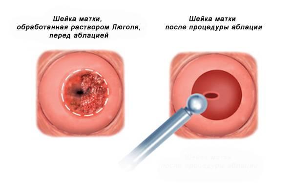 Дисплазия шейки матки
