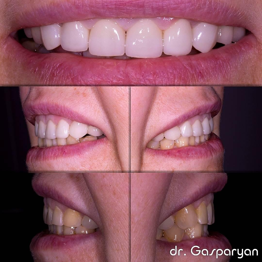 Как скрыть, что нет зуба