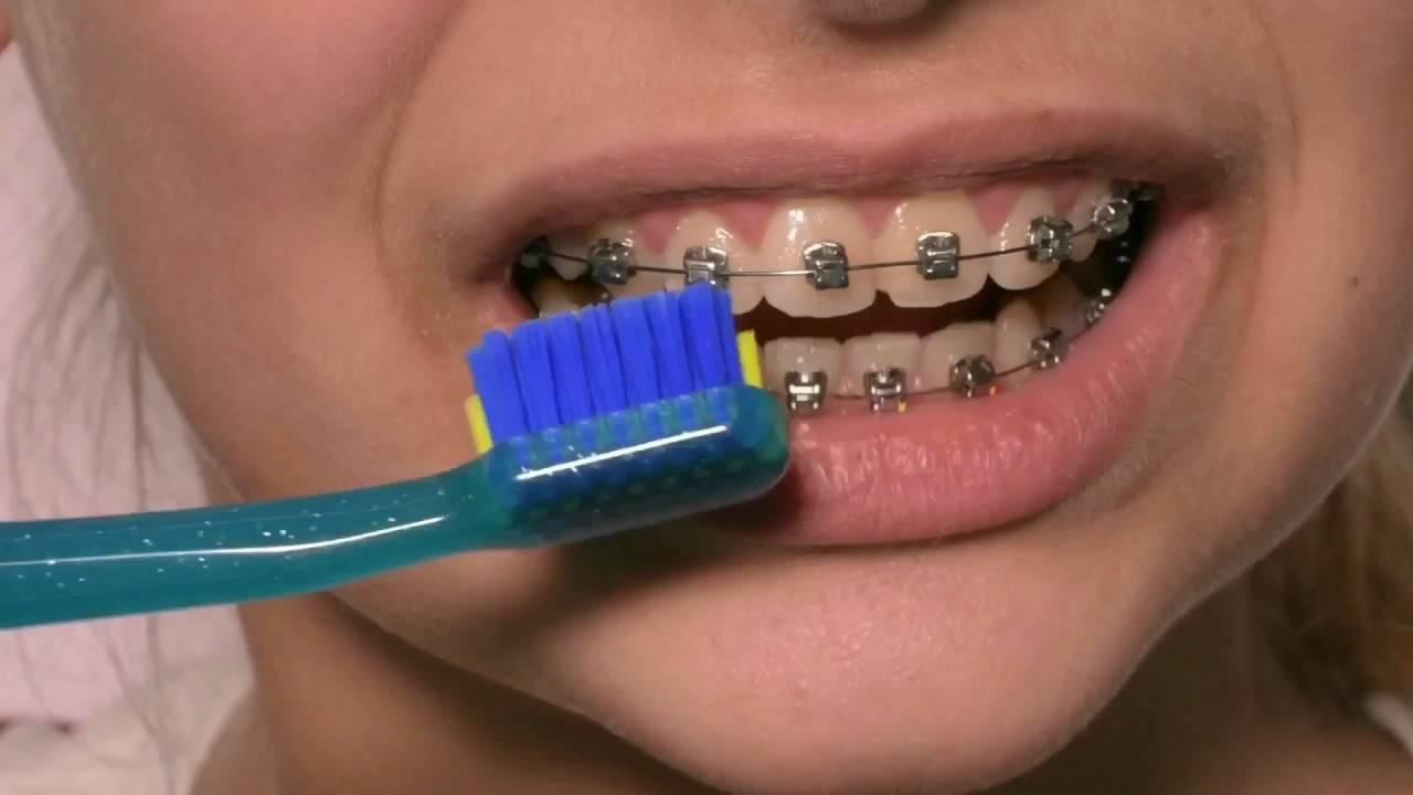 15 лучших зубных щеток