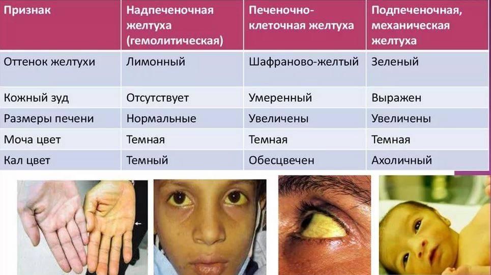 Изменение цвета кожи: болезни, симптомы, причины, лечение