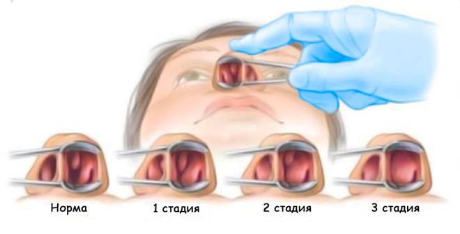 Лечение полипов в носу в домашних условиях