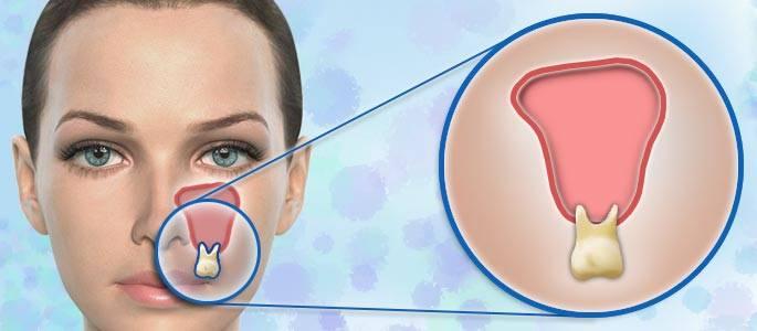 Болят гайморовы пазухи: воспаление при синусите и лечении челюсти – 7 причин постоянной боли