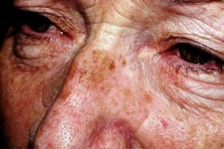 Возрастные изменения кожи тела и волос