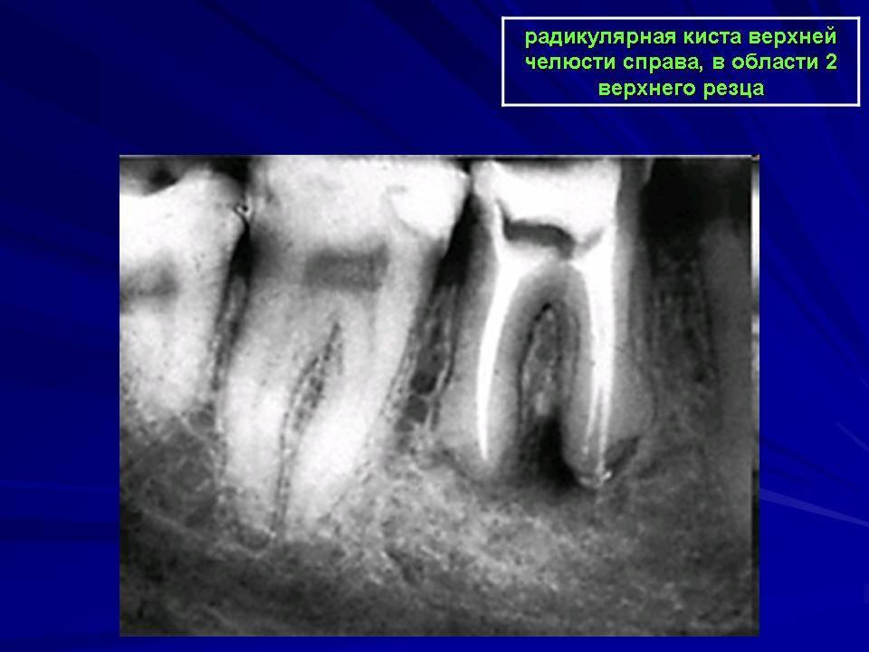 Опасна ли киста в челюсти и как ее лечить