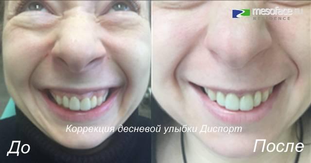Ботокс в губы — результат процедуры