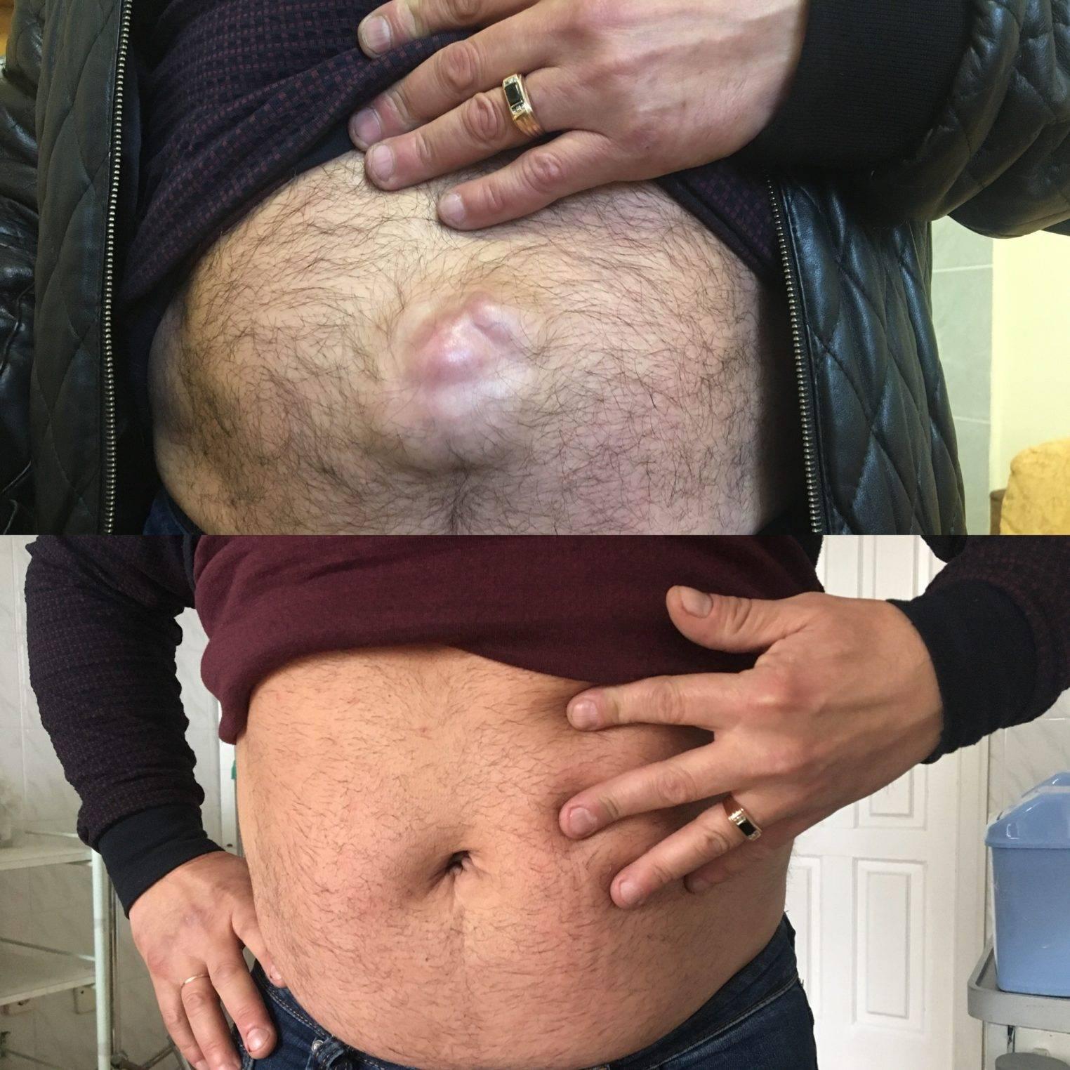 Причины появления и лечение пупочной грыжи после родов