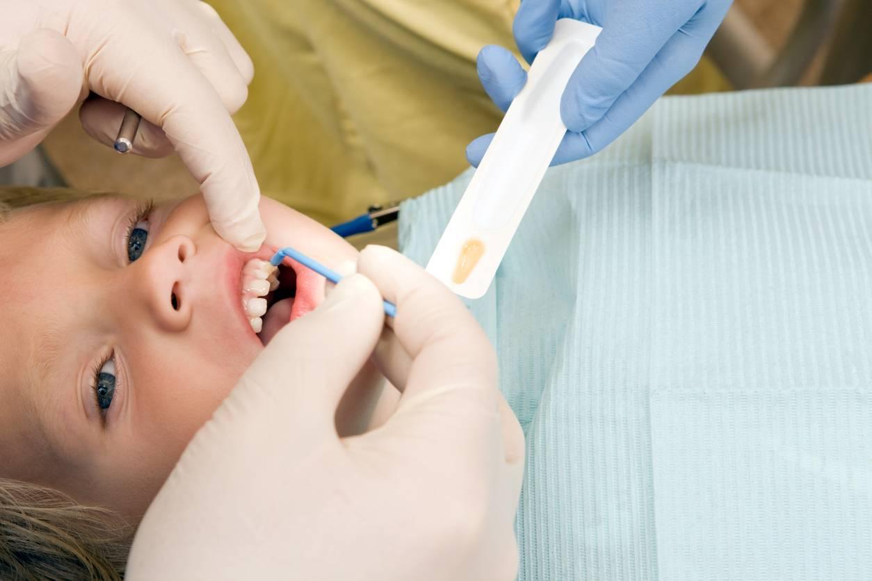 Зачем проводят фторирование молочных зубов