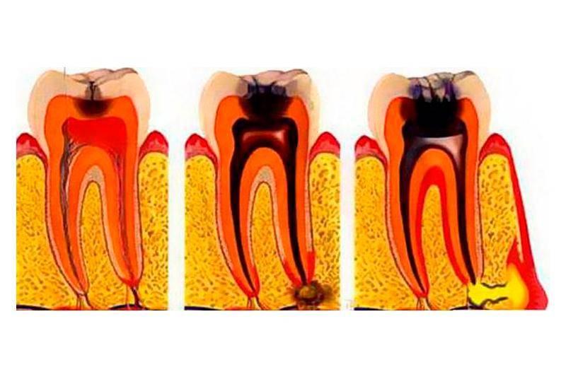 Такое разнообразие видов одного заболевания! редкие формы пульпита: какие самые необычные?