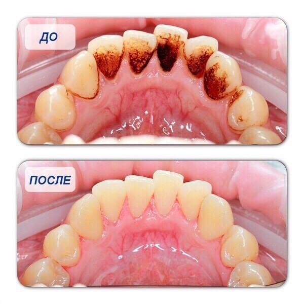 Cтоматология«на пушкарской» – ультразвуковая чистка зубов со скидкой 72% во владимире