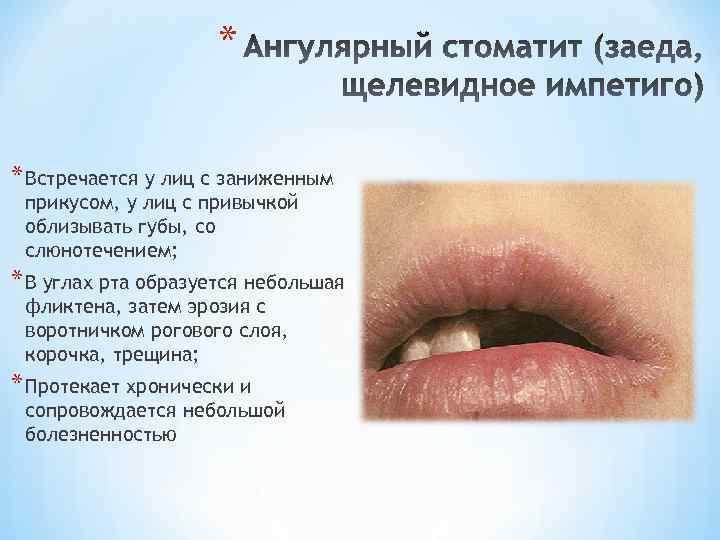 Заеды в уголках рта: причины и лечение у взрослых и детей