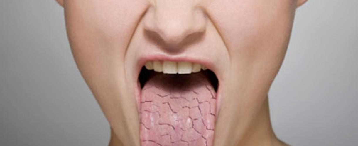Запах изо рта по утрам — причины, лечение и профилактика