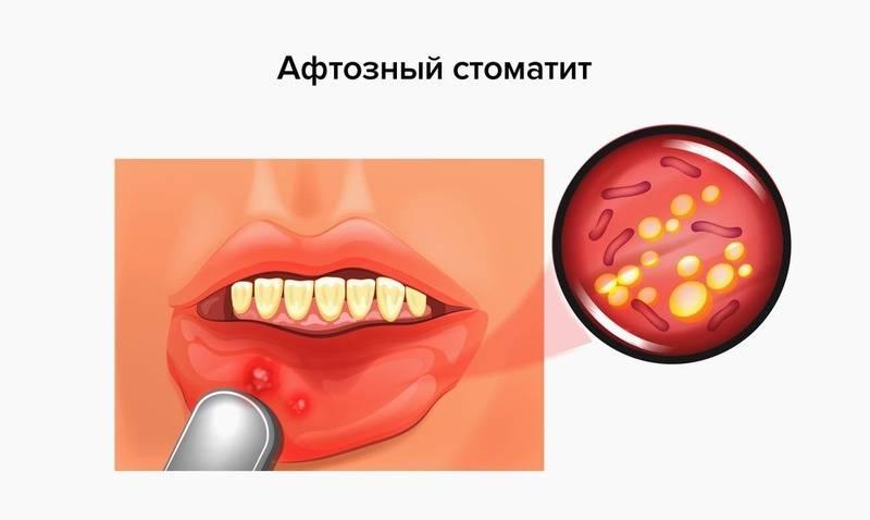 Чем лечить стоматит у взрослых во рту: симптомы, лечение, фото
