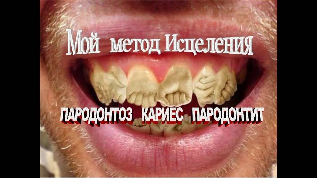 Пародонтоз заразен или нет