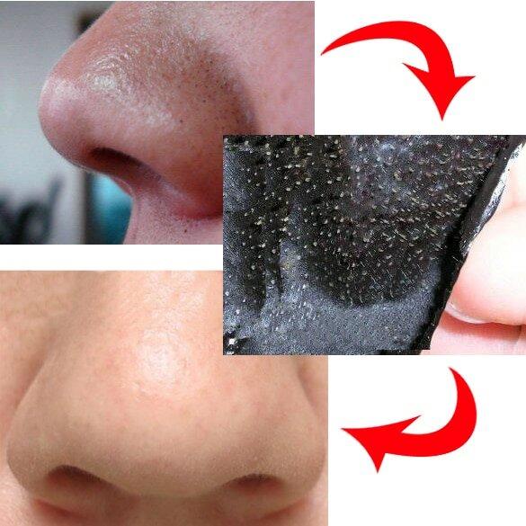 Очищающие полоски для носа: мифы и факты. помогают ли полоски от черных точек: правильное применение, фото до и после, названия лучших полосок, отзывы