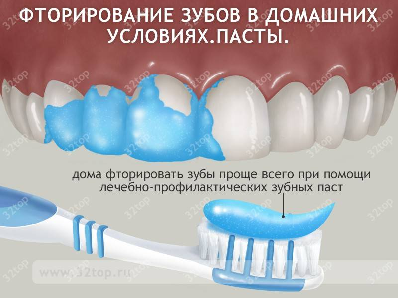 Фторирование зубов у детей и взрослых, какие показания к процедуре, фото до и после